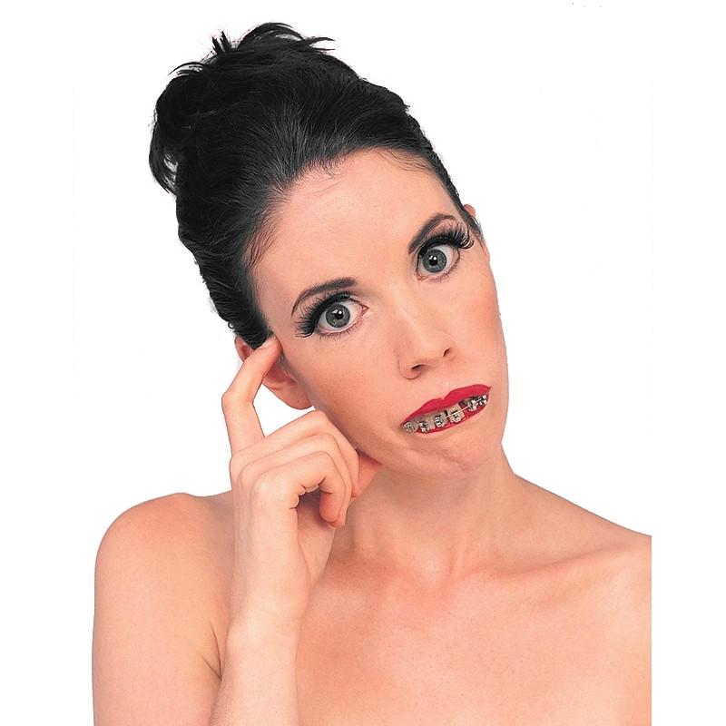 Dentes com ferros profissionais